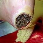CENAS FORTES: Calcanhar de Maracujá: Trata-se de uma doença horrível