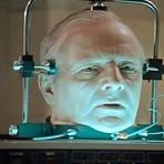 Cientista prevê primeiro transplante de cabeça em dois anos