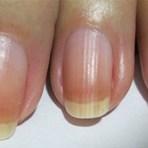 Unha manchada: o que fazer quando esmalte deixa unha amarelada