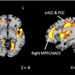 Teste de Estresse Mostra que Traumas da Infância Podem Causar Alterações No Cérebro