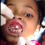 Larvas de mosca na boca de uma criança