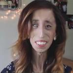 Mulher chamada de 'mais feia do mundo'