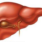 Dez alimentos que ajudam na limpeza do fígado.