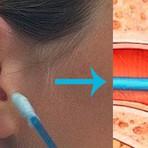 Como limpar o ouvido corretamente? Nunca utilize cotonetes ou similares. Entenda aqui a maneira correta.