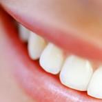 Você sabia que alguns alimentos mancham os dentes?
