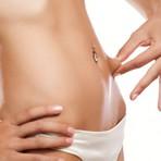 Mitos e verdades sobre eliminação da gordura localizada