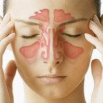 Sintomas de Sinusite – Veja Como Diagnosticar a Doença