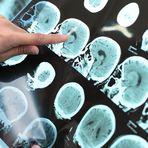 Cientistas de Cingapura descobrem novo tratamento para demência