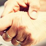 Saúde - Artrite Reumatóide - Fatores De Risco, Sintomas
