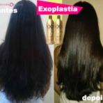 Detox capilar antes e depois