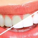 Saúde - Os alimentos que são inimigos dos dentes