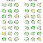 Opinião e Notícias - Não existe cérebro masculino ou feminino