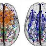 Agora é definitivo: não há diferenças entre o cérebro de homem ou mulher